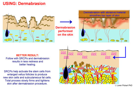 What to Use After Dermabrasion