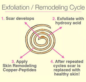 Exfoliation Cycle